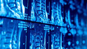 Ростех построит в Приморском крае центр протонной терапии рака